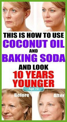 Learn How To Use Coconut Oil And Baking Soda To Look 10 Years Younger – Estin Doll Up – beauty skin care Baking Soda Water, Baking Soda Shampoo, Baking Soda Scrub, Anti Aging Creme, Anti Aging Tips, Shampoo For Itchy Scalp, Shampoo Bar, Dry Scalp, Natural Shampoo