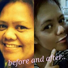This is me .. the same people with different views. You get older is a natural thing, but age is not a reason for us not pay attention to the health of the skin, especially the face .. The original photo without editing For those who want healthy skin, and her face lit up, I'm ready to help .. Thank you #herbalifeskin Hp / wa .. +6281248718706 Ig .. dian_behrooz Pinterest .. dianbehrooz