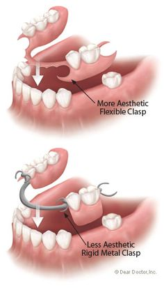 Types of flexible partial dentures.