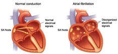The Human Body, Causes Of Heart Disease, Cardiac Arrhythmia, Cardiac Nursing, Atrial Fibrillation, Respiratory Therapy, Nursing Tips, Funny Nursing, Nursing