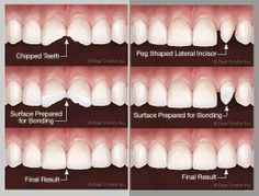 Tooth bonding is used in several different ways, but is probably most useful for repairing chipped teeth. Bonding materials (high-density, modern plastics called composite resin) and porcelain—are more natural in color and can be designed to perfectly match the surrounding teeth making it difficult to discern there ever was a broken tooth.  #cosmetic dentist jupiter fl Teeth Bonding, Dental Bonding, Toothpaste Pimple, Teeth Whitening, Porcelain Veneers, Jupiter Fl, Dental Procedures, Stained Teeth