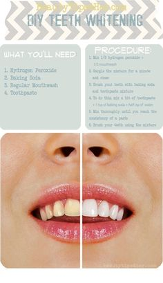 Beauty How-To's: Whitening your Teeth w/ hydrogen peroxide, baking soda, mouthwash, and toothpaste Diy Beauté, Diy Crafts, Easy Diy, Sell Diy, Decor Crafts, Beauty Makeup, Hair Beauty, Beauty Care, Beauty Skin