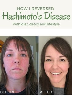 How I reversed Hashimoto's disease with diet and detox. How I reversed Hashimoto's disease with diet and detox.,Hashimotos How I Reversed Hashimoto's Disease with Diet, Detox, and Lifestyle via Deliciously Organic Related posts:Hypothyroidism Diet. Hashimoto Thyroid Disease, Hypothyroidism Diet, Thyroid Hormone, Hashimotos Disease Diet, Hashimoto Symptoms, Thyroid Issues, Losing Weight With Hypothyroidism, Low Thyroid Symptoms, Foods For Thyroid Health