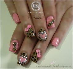 Cheetah Print Acrylic Nails | Candy Pink Nails with Leopard Print, Hearts & Bows (Version 2)