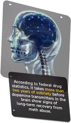 Recovery from #meth addiction is possible! http://www.pinterest.com/daphnajcohen/psychology-and-mental-health/