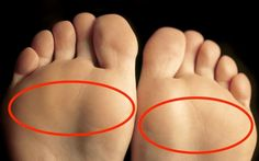 Best Walking Shoes For Ball Of Foot Pain. In the modern life, many people have to deal with the ball of foot pain, which has been known as Metatarsalgia.