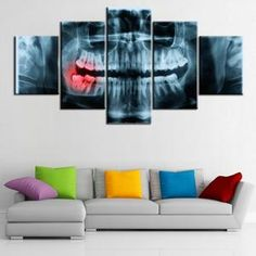 5 piece canvas x-ray Painful Teeth dental doctor picture Canvas picture painting room decor print poster wall art Dagobert Duck, Poster Wall, Poster Prints, Art Print, Dental Posters, Dental Office Decor, Dental Art, Canvas Pictures, Stone Art