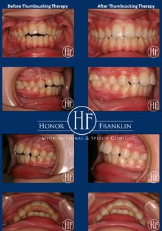 Example of how eliminating a thumbsucking habit can provide positive changes in the teeth.Do you have a child with a thumb or finger sucking habit & you have tried everything to eliminate it?Well, you haven't tried a digit sucking expert also known as a Certfied OMT, Dr. Honor Franklin uses positive behavior modification & not hurtful mouth appliances.Sucking habits beyond the age of 4-5 years of age can cause dental & speech problems, thumb/finger infections as well as being teased.
