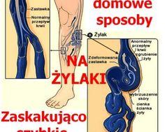 PrzepisyNaZdrowie.pl-domowe-sposoby-na-zylaki-zaskakujace-efekty Varicose Veins, Health Diet, Bodybuilding, Medical, Beauty, Leo, Therapy, Health, Medicine