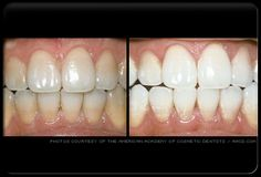 Are you considering whitening your teeth?
