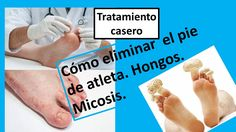 Cómo eliminar el pie de atleta. Hongos. Micosis. Quites, Athlete's Foot, Natural Remedies, Health, Beauty, Blue Prints