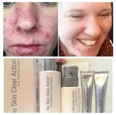 NU SKIN CLEAR ACTION® SYSTEM Whether you experience breakouts now or have in the past, you may find your skin doesn't look as healthy or vibrant as before. That's because blemishes can affect the overall appearance of your skin.  The Nu Skin Clear Action System focuses on more than just the blemish. It's a comprehensive system that helps to clear the signs of past and present blemishes and ensures the future health of your complexion. #acne #clearskin Nu Skin, Best Skincare Products, Skin Products, Galvanic Spa, Daily Makeup Routine, Face Wash, Clear Skin, Cleanser, Finding Yourself
