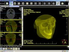 Medical Workstation 3D Viewer | LEADTOOLS Videos