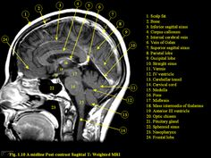 axial mri labeled - Google Search