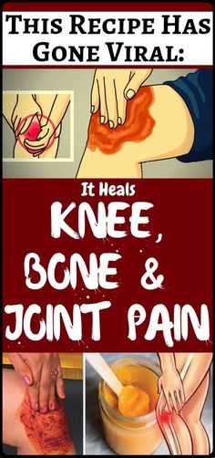 People Go Crazy For This Recipe! It Heals Knee, Bone and Joint Pain - Health Remedies Natural Cures, Natural Health, Natural Life, Health Remedies, Home Remedies, Health Benefits, Health Tips, Tomato Nutrition, Stomach Ulcers