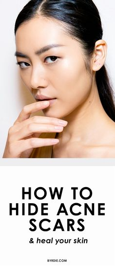 How to hide acne scars the right way AND heal your skin