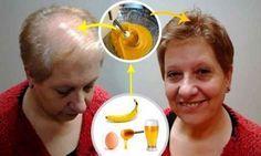 Recept vďaka ktorému vám narastú vlasy! | Domáca Medicína
