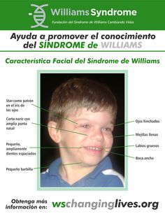 Williams Syndrome Changing Lives Foundation Wschanginglives On