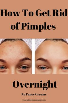 Dry Out Pimples, How To Clear Pimples, How To Get Rid Of Pimples, Pimple Marks, Acne Marks, Oily Face, Acne Face Mask, What Causes Pimples, Painful Pimple