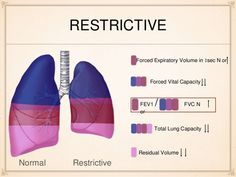 pulmonary function test results obstructive restrictive normal - Google Search