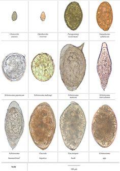 Parasites Found In Humans | Fascioliasis Due to Fasciola hepatica and Fasciola gigantica Infection ...