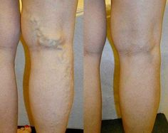 Varicose Veins Remedies Does taking herbal supplement like grape seed extract or horse chestnut help prevent, if not cure, symptoms of deep vein insufficiency?
