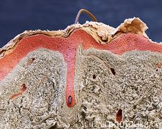 Actual photo (microscopic) of hair follicle showing the indention of the skin to the depth of the follicle.