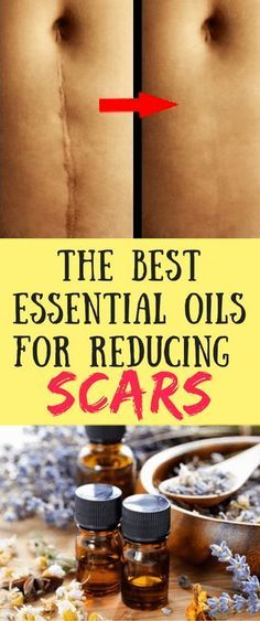 Best Essential oils for removing scars
