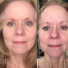 "REDEFINE W/ AMP Roller, Multi-Function Eye Cream, Night & Lip Renewing Serums & REVERSE. - (Taken in the same location, NO foundation, NO powder, NO concealer. I have on lip serum and some mascara.)""I never imagined that a product that I could buy from a family member, use at home, easy as 1,2,3,4, could provide such great results! Rodan + Fields is improving my skin every day, erasing years of sun and acne damage. I started in Feb. 2016 and used Redefine with the (my favorite) Amp Roller…"
