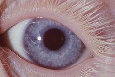 Albino eyes, violet eyes