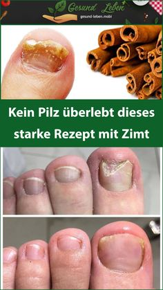 No mushroom s You are in the right place about Nagelpilz Hausmittel Here we offer you the most beautiful pictures about the Nagelpilz Hausmittel listerine you are looking for. When you examine the No mushroom s part of the picture you can get … Home Remedies Beauty, Actifry, Cinnamon Recipes, Mushroom Recipes, Natural Health, Health And Beauty, Health Tips, The Cure, Stuffed Mushrooms