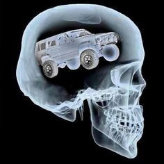 Jeep on the Brain