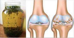 Elimine dores musculares e nas articulações com este remédio de ervas anti-inflamatórias!   Cura pela Natureza