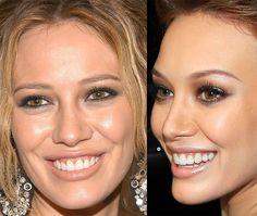 nose plastic surgery | hilary duff plastic surgery fail breast implants nose job photos