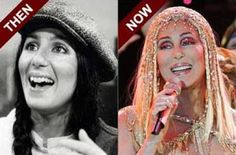 CHER-PLASTIC-SURGERY-BEFORE-AND-AFTER (320×211)