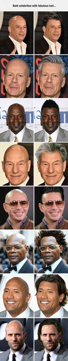 If bald celebrities had hair...
