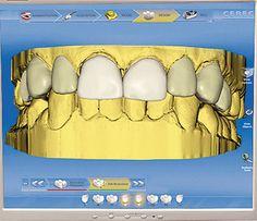 Sirona Dental System's CEREC 4.0 Software