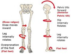 Understanding how the pelvis and the hip muscles work is the real key to correct postural bow legs or knock knees. Learn why and how to correct them. Foot Exercises, Scoliosis Exercises, Stretches, Stretching Exercises, Fitness Workouts, Knock Knees, Psoas Release, Pelvic Tilt, Bow Legged