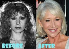 Helen Mirren Plastic Surgery Before and After Picture