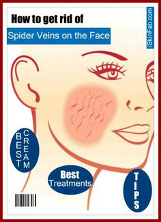 How to eliminate spider veins on the face with top treatments, creams and natural remedies. Beauty Tricks, Diy Beauty, Beauty Skin, Organic Facial, Organic Skin Care, Get Rid Of Spider Veins, Skin Care Cream, Face Facial, Anti Aging Tips