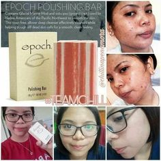 pimples is a little pustule or papule which is triggered by the extreme production of sebumor all-natural skin oil that creates blocked pores resulting in red, puffy aswell as pus-filled sores Oily Skin Treatment, Pimple Solution, Skin Polish, Natural Oils For Skin, Pimples Remedies, Types Of Acne, Acne And Pimples, Clean Pores, Skin Treatments