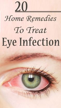 25 Effective Home Remedies To Treat Eye Infection : Eye infections can affect anybody. Most eye infections are caused by bacteria, viruses, fungus or other microbiological means. These pathogens can cause eye redness, itching and swelling. Natural Health Remedies, Natural Cures, Natural Healing, Herbal Remedies, Holistic Remedies, Natural Medicine, Herbal Medicine, Different Types Of Eyes, Eye Infections