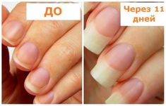 To grow healthy and strong nails in – Personal Care Pretty Hand, Ongles Forts, Ways To Be Healthier, Long Hair Tips, Strong Nails, Hair Growth Tips, 5 Ways, Nail Care, Healthy Hair