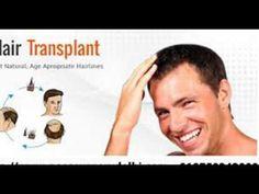 Hair Transplant Clinic in Delhi