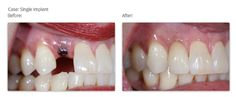 #Dental #implant facts and after effects. Learn more about dental implants,before you get one.