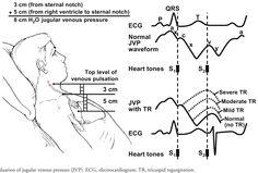 evaluation of jugular venous pressure