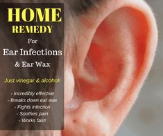 Remedies For Sinus Infection - This simple ear wax home remedy is actually more effective than some expensive, over-the-counter solutions at the pharmacy Ear Infection Home Remedies, Earache Remedies, Herbal Remedies, Sinus Infection, Home Remedies Ear Ache, Cold Remedies, Ear Cleaning, Home Health, Beauty Tips