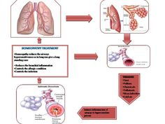 Homeopathy treatment for #asthma, it is completely curable, safe And effective. for more details visit our website.