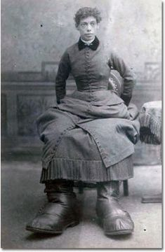 """Misses Fannie Mills (August 30, 1860 or 1859 - 1899), AKA """"The Ohio Big Foot Girl,"""" she had a disease called Milroy Disease which caused for legs and feet to become gigantic. She was born in Sussex, England and had two sisters. Both other sisters were born normally. She was married to William Brown in 1886. William was born in 1834 and died in 1904. Fannie was only 39 when she died. She had a baby in August of 1887, but it died. Fannie's feet got to be 17 inches long, until she died in 1899."""