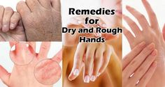 13 Best Home Remedies for Dry and Rough Hands